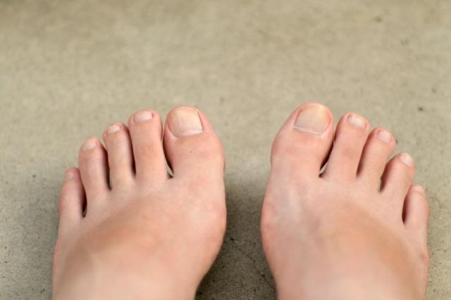 爪水虫にマキロンが効くという噂が・・・。  それって本当なの?